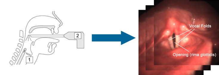 an approach for segmentation of medical When applied to a stack of images, typical in medical imaging histogram-based approaches can also be quickly adapted to apply to multiple frames in terms of image segmentation.